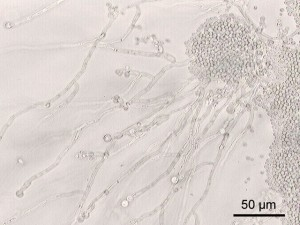 candida albicans under a microscope